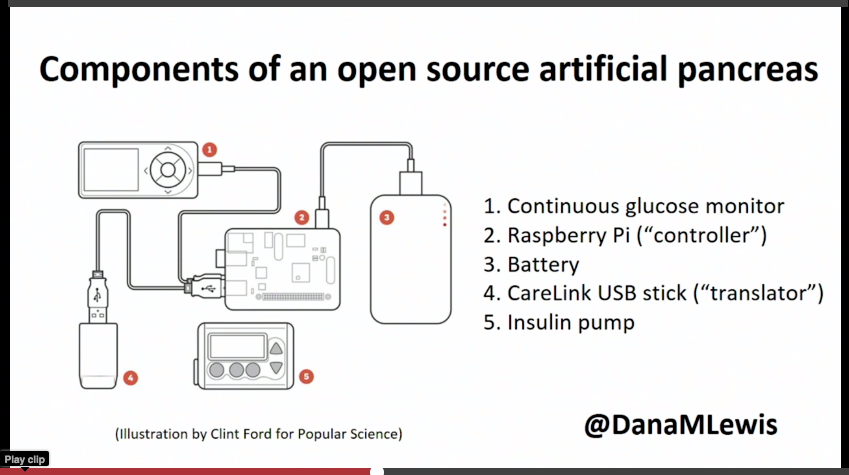 OpenAPS components