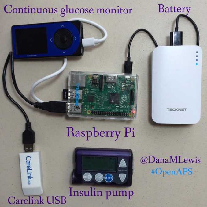 Artifical Pancreas Systems